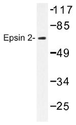 AP01400PU-N - Epsin-2