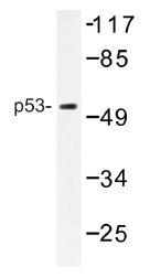 AP01417PU-N - TP53 / p53