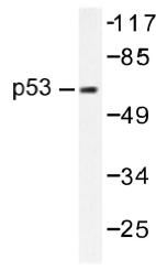 AP01418PU-N - TP53 / p53