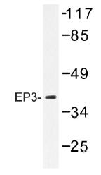 AP01424PU-N - PTGER3