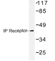 AP01428PU-N - Prostacyclin receptor / PTGIR