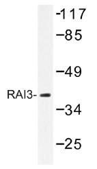 AP01430PU-N - GPRC5A / RAI3