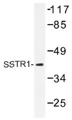 AP01431PU-N - SSTR1