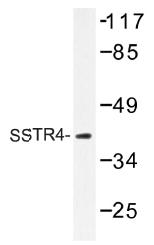 AP01432PU-N - SSTR4