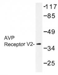 AP01435PU-N - Vasopressin V2 receptor (AVPR2)