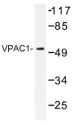 AP01436PU-N - PACAP type II Receptor / VIP Receptor