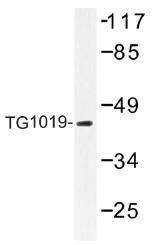 AP01438PU-N - Oxoeicosanoid receptor 1