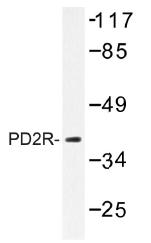 AP01440PU-N - PTGDR