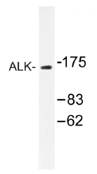 AP01443PU-N - CD246 / Anaplastic lymphoma kinase