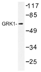 AP01451PU-N - Rhodopsin kinase