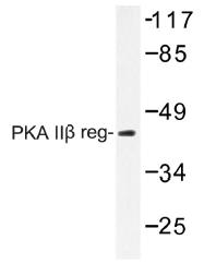 AP01453PU-N - PRKAR2B