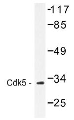 AP01458PU-N - CDK5