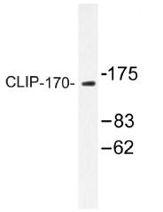 AP01464PU-N - CLIP1 / Restin