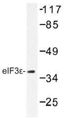AP01470PU-N - EIF3E / EIF3S6