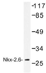 AP01480PU-N - NKX2-6