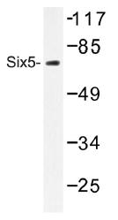 AP01481PU-N - SIX5