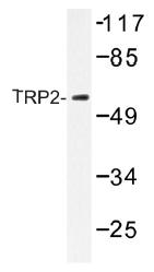 AP01482PU-N - TYRP2 / DCT