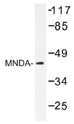 AP01484PU-N - MNDA