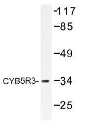 AP01486PU-N - CYB5R3