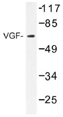 AP01489PU-N - VGF