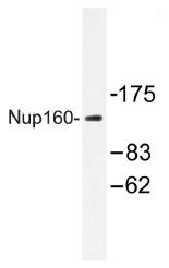 AP01491PU-N - NUP160