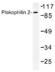 AP01493PU-N - Plakophilin-2