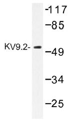 AP01495PU-N - KCNS2