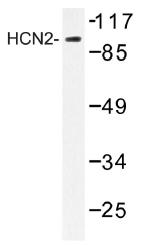 AP01496PU-N - HCN2 / BCNG2
