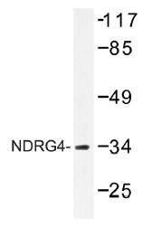 AP01498PU-N - NDRG4