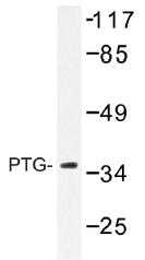 AP01499PU-N - PPP1R3C / PTG