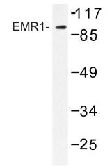 AP01507PU-N - EMR1 / TM7LN3