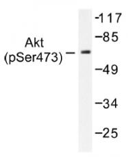 AP01520PU-N - AKT1 / PKB