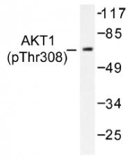 AP01522PU-N - AKT1 / PKB