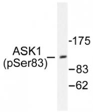 AP01526PU-N - MEKK5 / ASK1