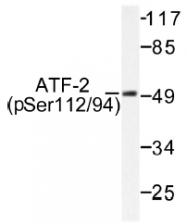 AP01528PU-N - ATF2