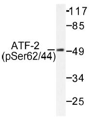 AP01529PU-N - ATF2