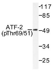 AP01530PU-N - ATF2