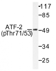 AP01531PU-N - ATF2