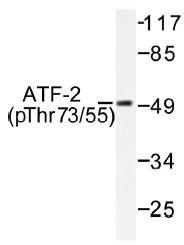 AP01532PU-N - ATF2