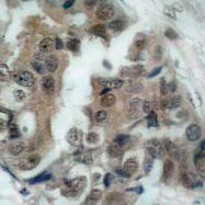 AP01534PU-N - Bcl-2-like 8