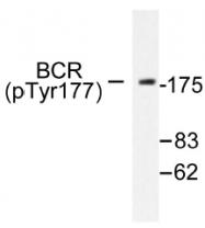 AP01539PU-N - BCR