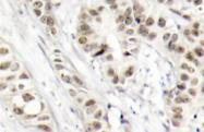 AP01540PU-N - BRCA1 / RNF53