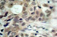 AP01548PU-N - CDC25C
