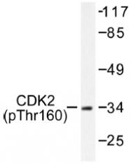 AP01550PU-N - CDK2