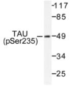 AP01704PU-N - MAPT / TAU