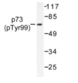 AP01664PU-N - Tumor protein p73 (TP73)