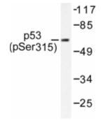 AP01657PU-N - TP53 / p53