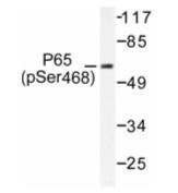 AP01648PU-N - RELA / NF-kB p65