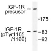 AP01611PU-N - CD221 / IGF1R