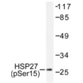 AP01607PU-N - HSPB1 / HSP27